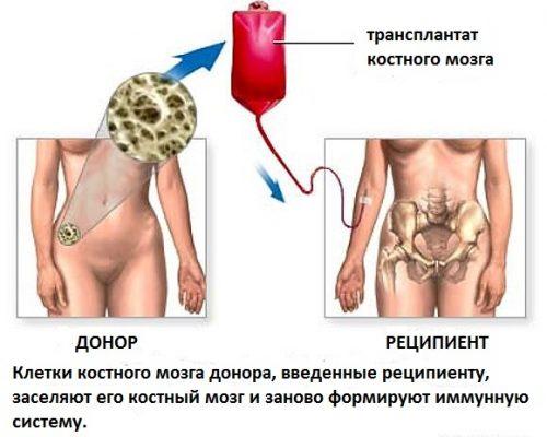 Трансплантация костного мозга