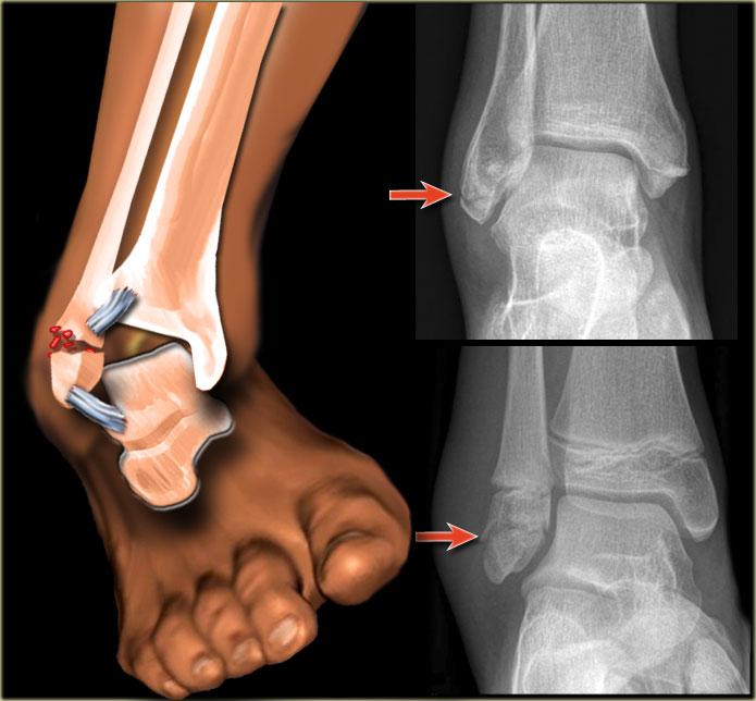 Перелом лодыжки на рентген снимке