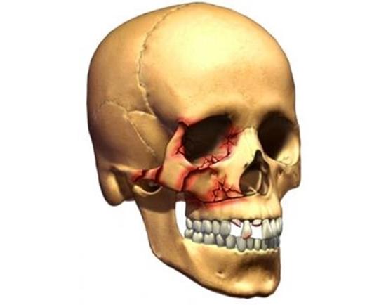Травма перелом скуловой кости и ее дуги