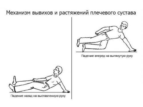 Травмирование плечевого сустава