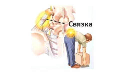 Повреждение связки внизу спины