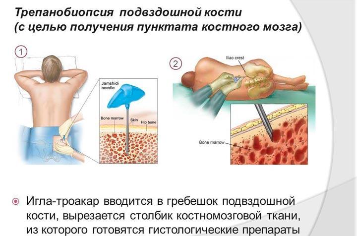 Трепанобиопсия гребешка подвздошной кости