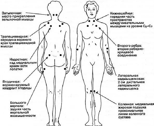 Триггерные точки фибромиалгии