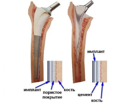Цементный и бесцементный протез