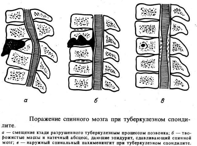 Поражение спинного мозга при туберкулезе