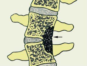 Инфекции в позвоночнике