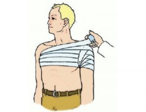 Тугая повязка на плечо
