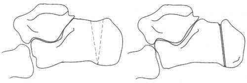 Удаление части пяточной кости