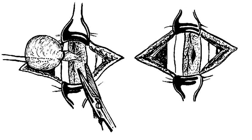 Хирургическое удаление гигромы