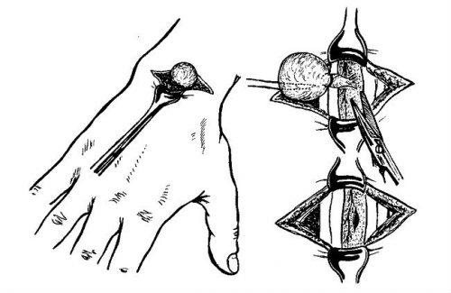 Удаление шишки на руке