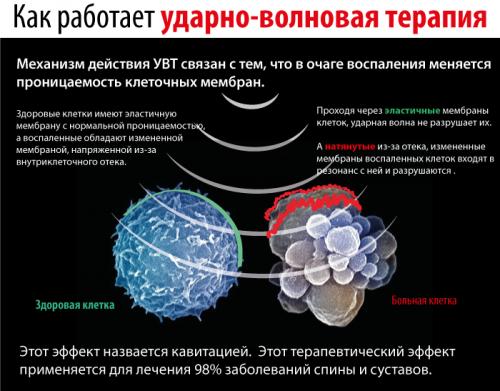 Механизм работы ударно-волновой терапии