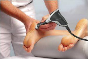 Ударно–волновая терапия пяточной шпоры
