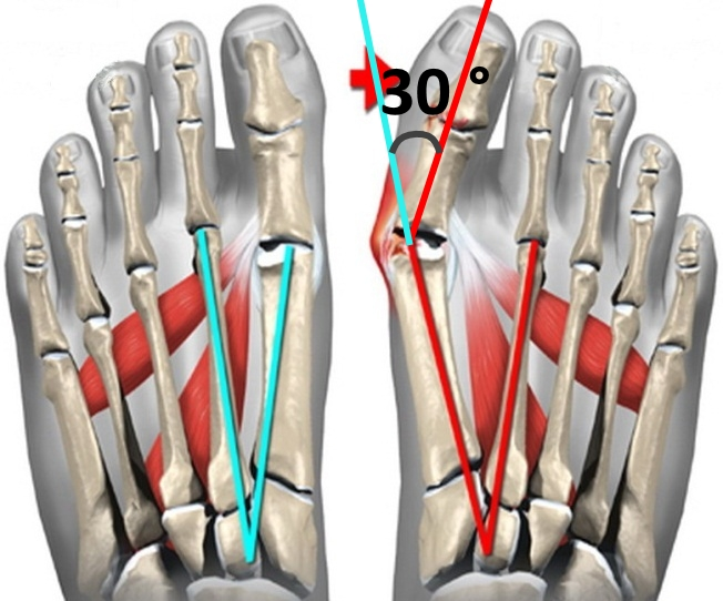 Угол деформации большого пальца стопы