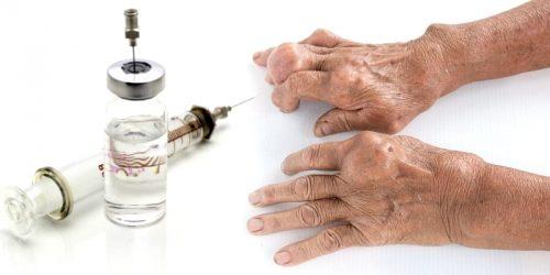 Лечение обострения подагры уколами