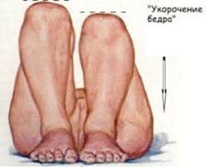 Визуальное укорочение ноги