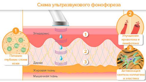 Действие ультразвукового фонофореза
