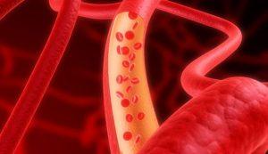 Улучшение кровообращения при артрите