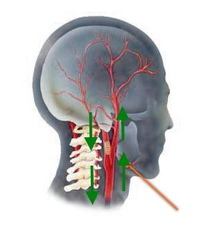 Улучшение кровообращения шеи