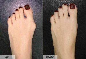 Уменьшение косточки на ноге