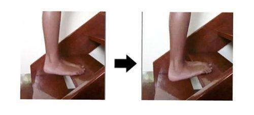 Упражнение на ступенях при пяточной шпоре