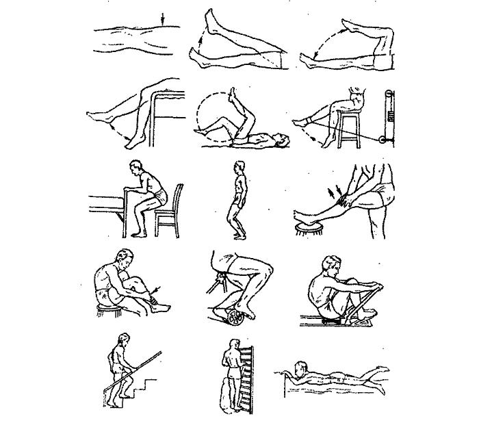 Упражнения для колена при контрактуре