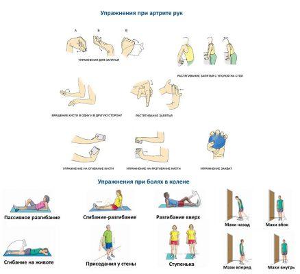 Упражнения при артрите коленей и рук
