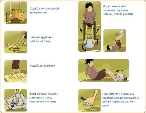 Упражнения при плоскостопии у детей