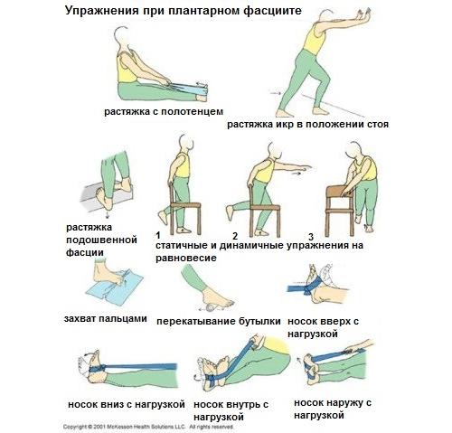 Упражнения при пяточной шпоре
