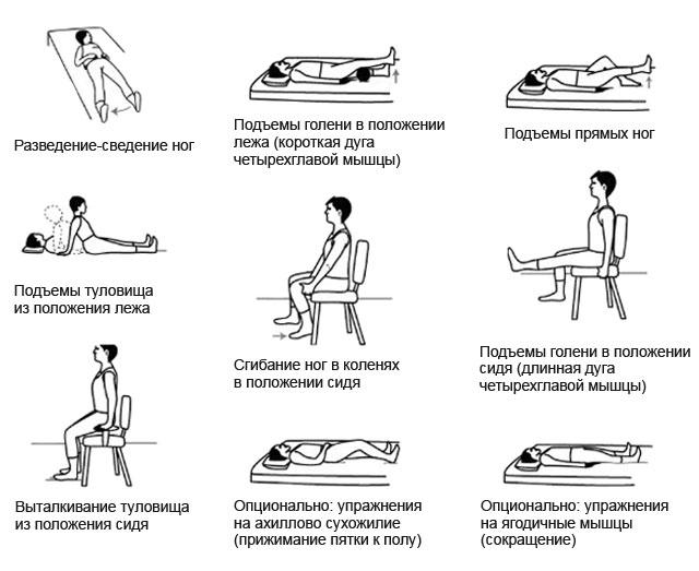 Упражнения при реабилитации бедренной кости