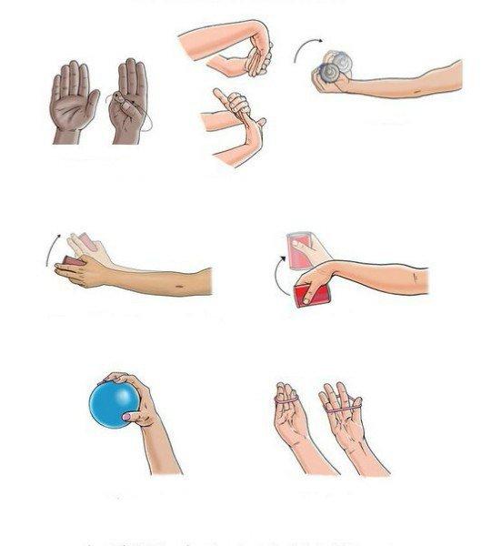 Упражнения при тендовагините кисти