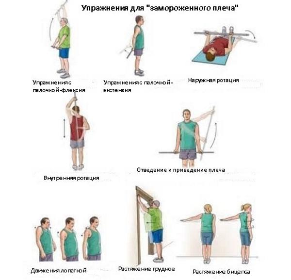 Упражнения при замороженном плече