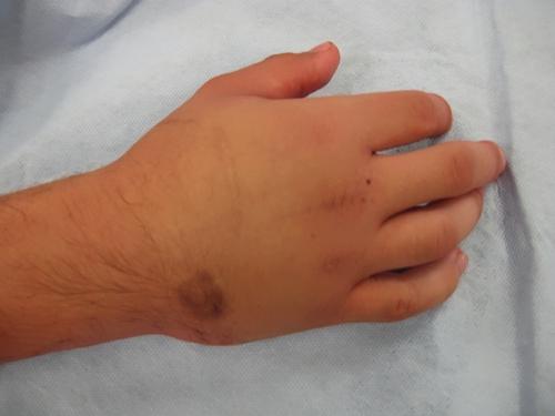 Гематома при ушибе кисти руки