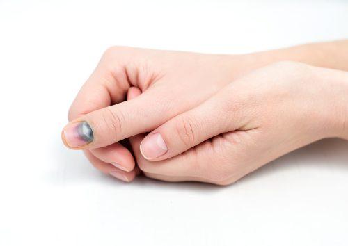 Почернение ногтя при ушибе
