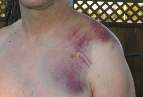 Ушиб в области плечевого сустава