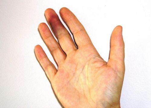 Получение ушиба пальца на руке