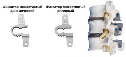 Установка межостистых фиксаторов
