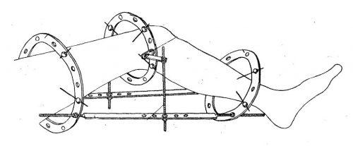 Устройство для лечения контрактуры колена