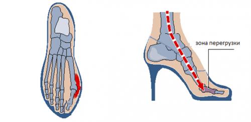 Халюс вальгус при ношении тесных туфель на высоком каблуке