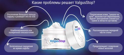 Преимущества крема Вальгус Стоп от шишек на ногах