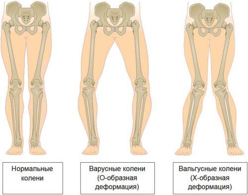 Варусное и вальгусное искривление ног
