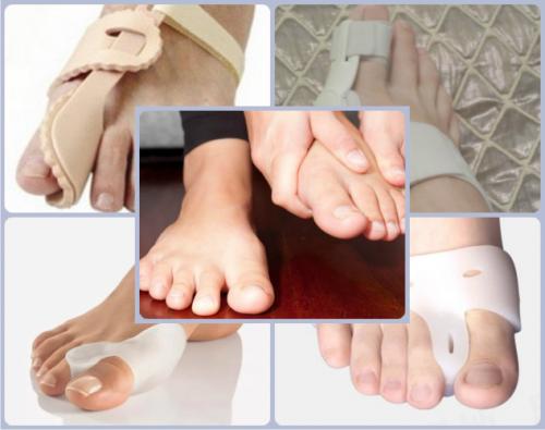 Выбор фиксаторов для большого пальца ноги