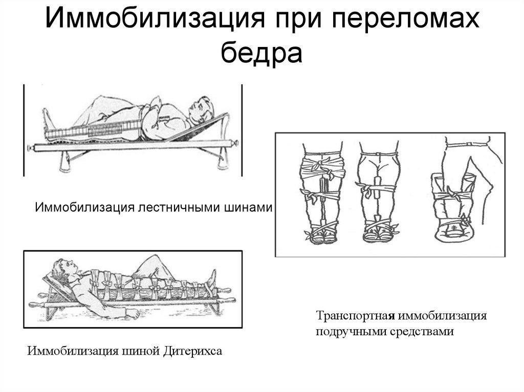 Виды иммобилизации при переломах бедра