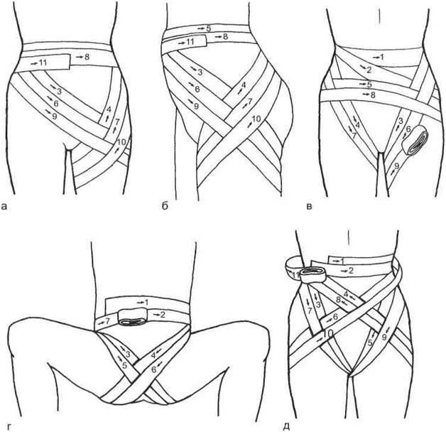 Виды колосовидной повязки на тазобедренные суставы
