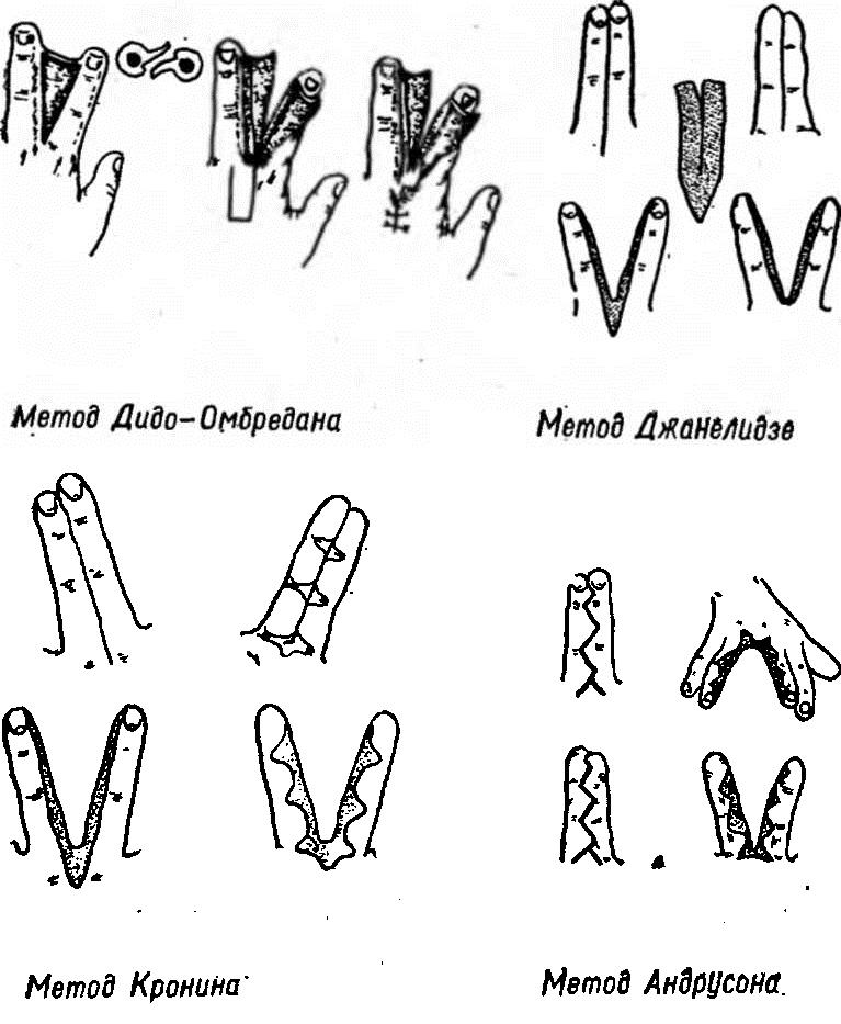 Способы оперативного разделения пальцев