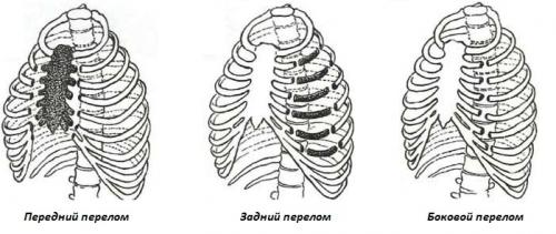 Виды переломов ребер