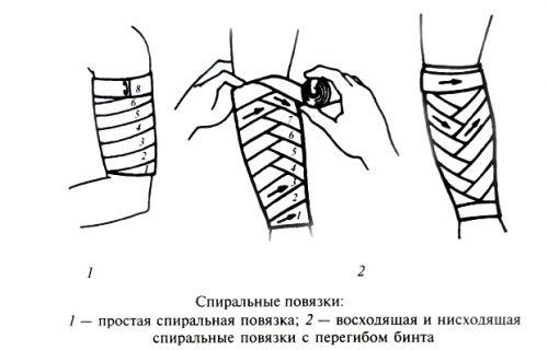 Виды спиральных повязок