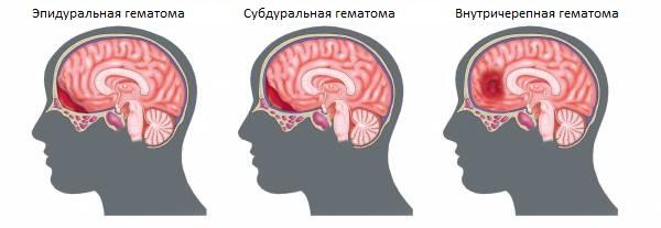 Черепно-мозговые гематомы