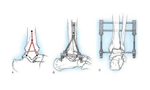 Внешний артродез голеностопного сустава