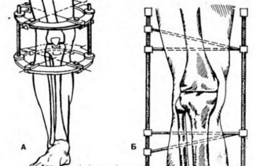 Внесуставной артродез колена
