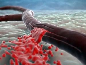 Повышенный риск кровотечений